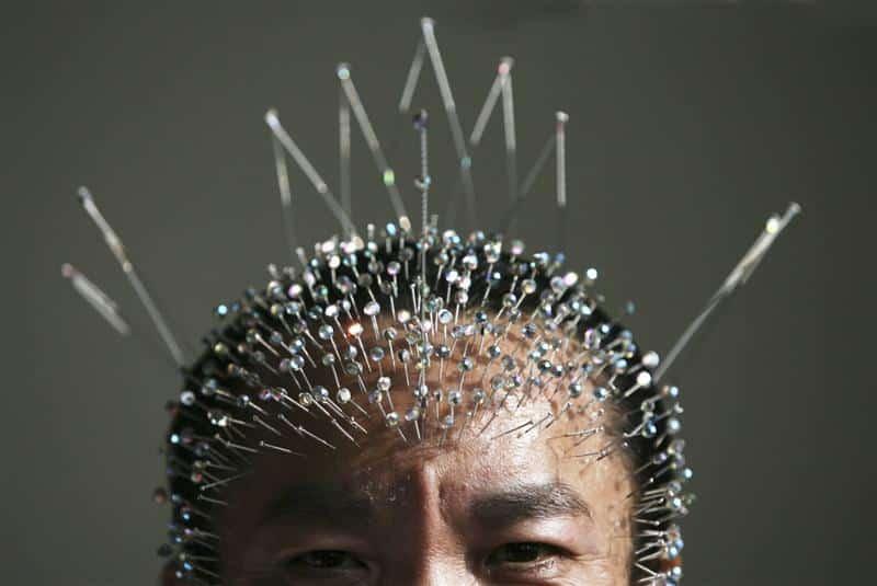 Imaginea thumbnail despre Acupunctura cea mai cunoascută terapie tradiţională chineză