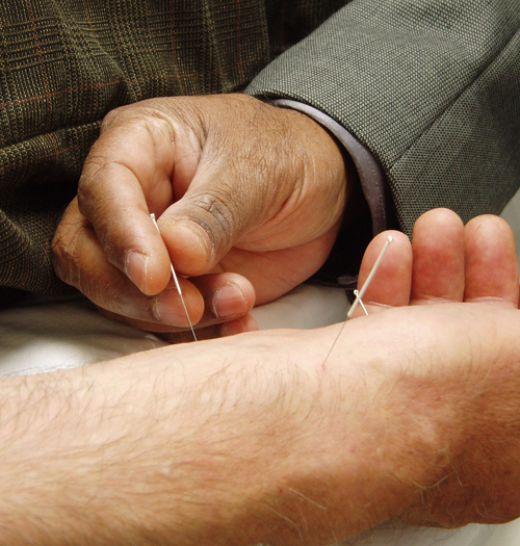 Alternativele naşterii fără dureri acupunctura