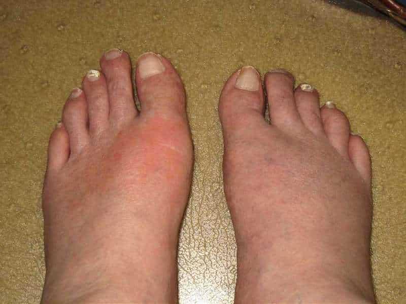 depozit-de-acid-uric-in-picioare