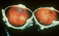Retinopatie pigmentara - posibile tratamente 1