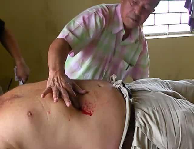 Imaginea thumbnail despre Vindecătorul filipinez Tony Agpaoa