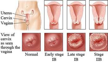 cancer de col uterin imagini