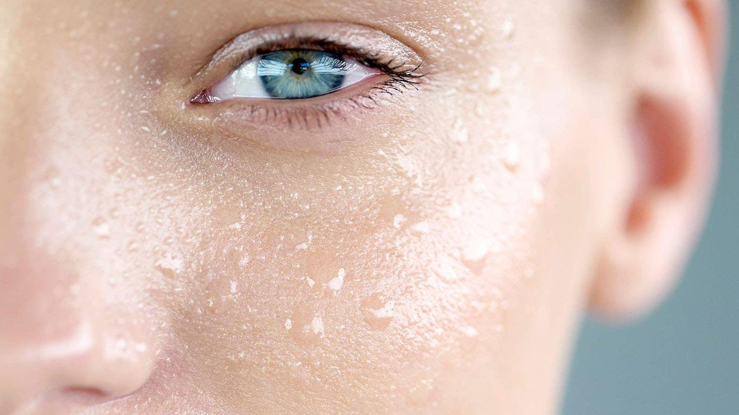 Tot ce ai nevoie sa stii despre transpiratia excesiva