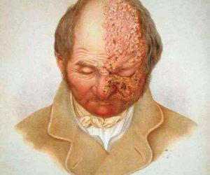 zona zoster - herpes facial