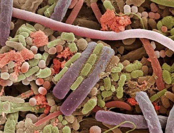 microbii de pe limba - fotografie prin microscop electronic