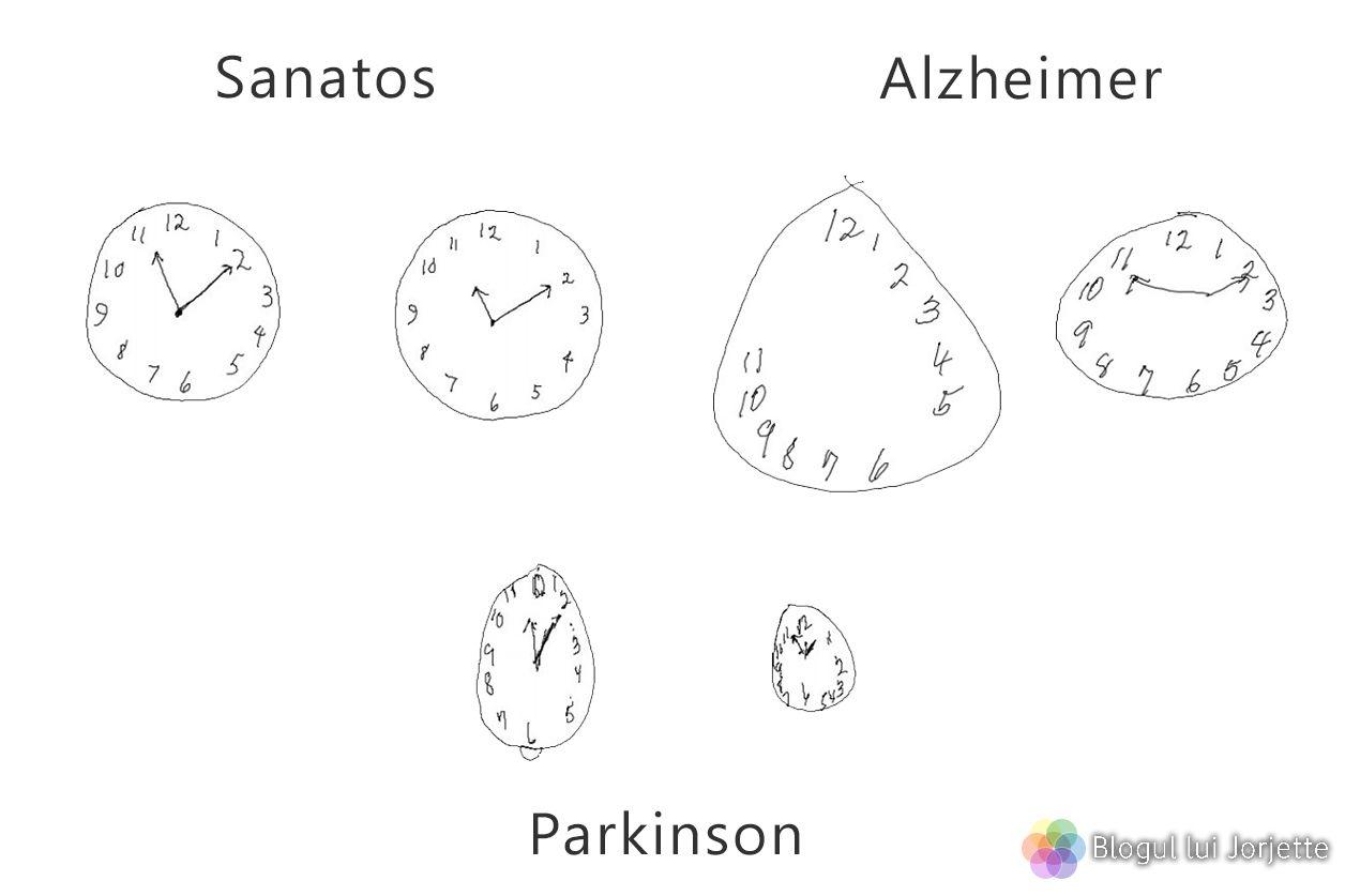 Test pentru Alzheimer - Desenul ceasului